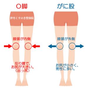 ガニ股О脚